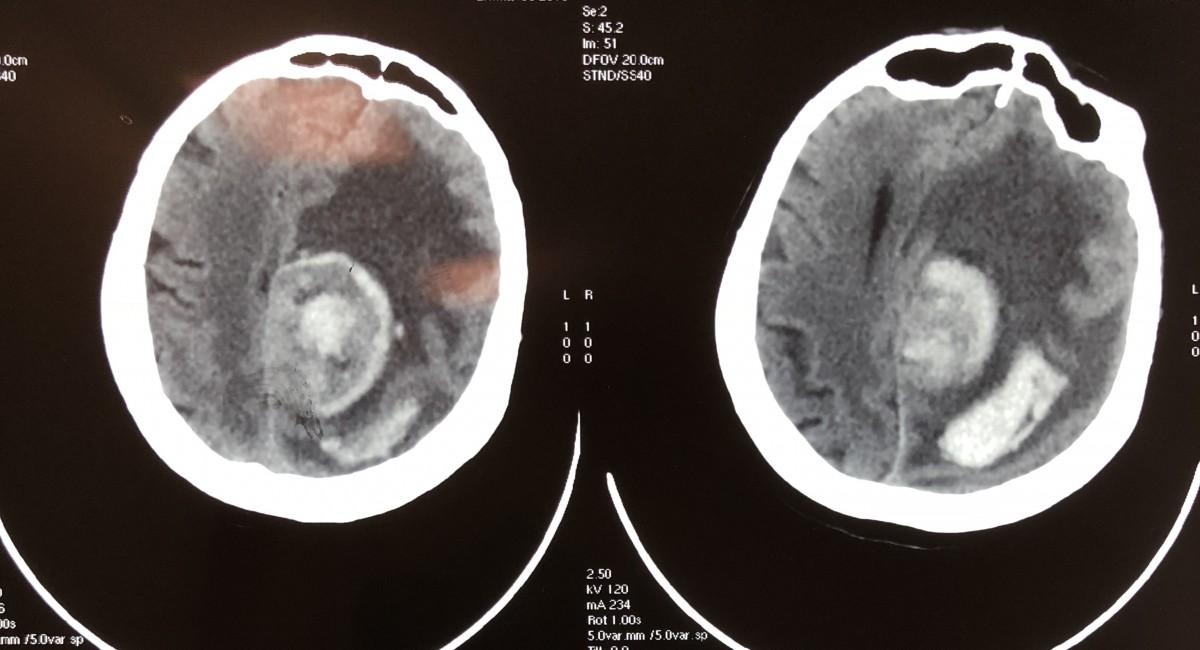 tumora si hematom 2