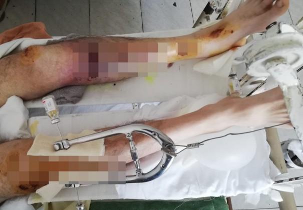 ranit spital accident (3)