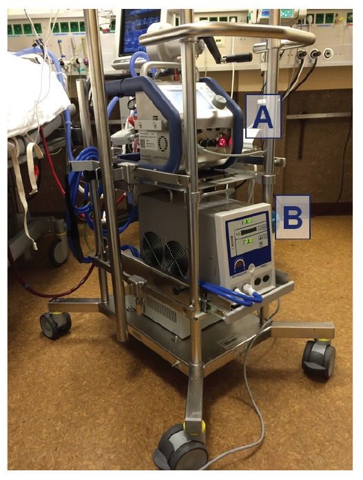 """""""Plămân artificial"""", pus la dispoziția Spitalul Județean de către Spitalul Polisano"""