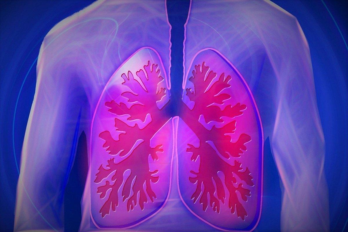Cum poți gestiona boala BPOC, care provoacă obstrucția căilor aeriene – Renunță la fumat!